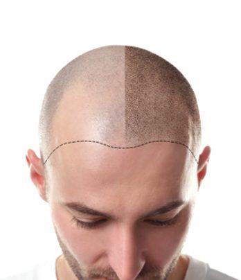 کاشت مو  به روش FIT –FUT ترکیبی