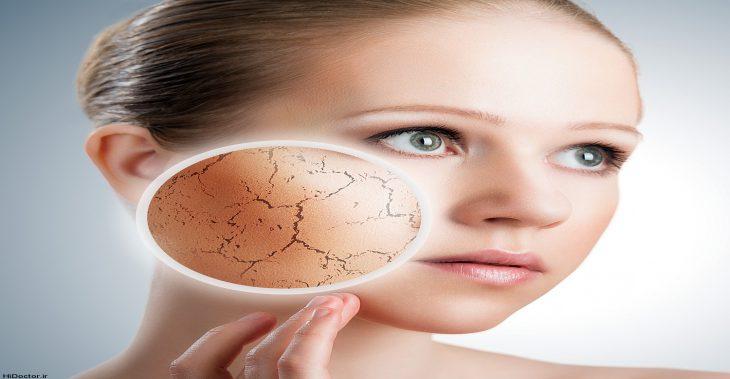 پوست شما خشک است یا کم آب؟