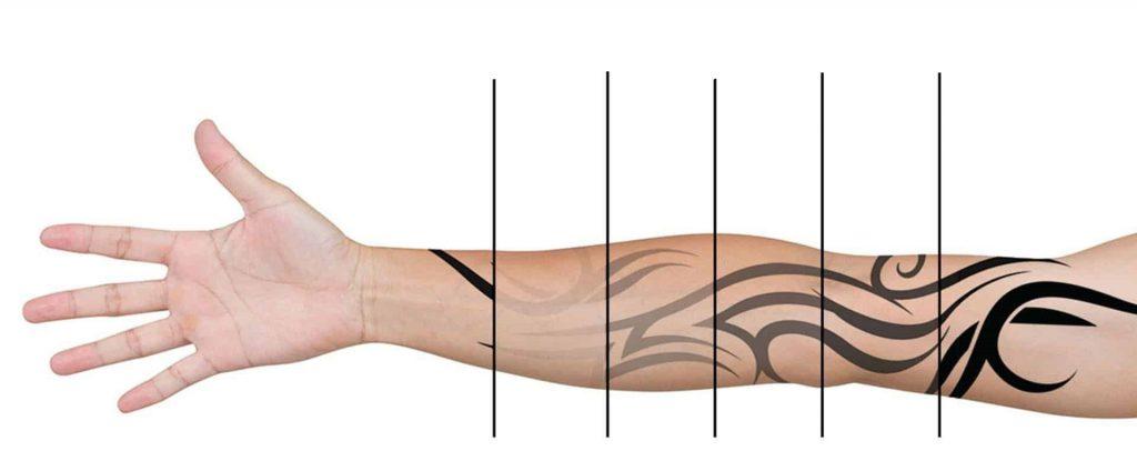 پاک کردن تتو به وسیله لیزر درمانی در کلینیک پوست و مو آبنوس مشهد