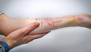 ترمیم جایی سوختگی و زخم به روش لیزر درمانی در کلینیک پوست و مو آبنوس