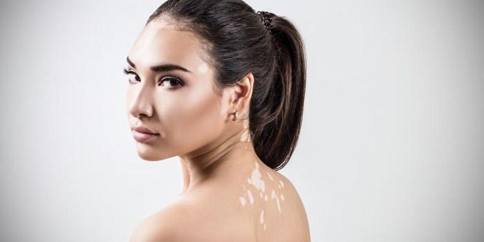 از بین بردن برص به روش لیزر درمانی در کلینیک پوست و مو آبنوس