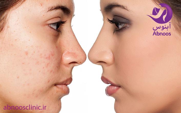 ضایعات پوستی چگونه درمان می شود کلینیک پوست و مو آبنوس مشهد