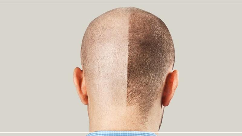 مراحل رشد مو بعد از کاشت مو