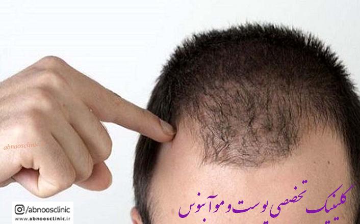 ریزش مو دلایل و روش های درمان آنها