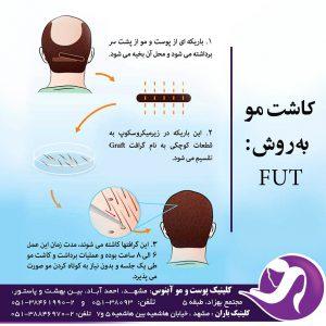 روش کاشت مو FUT