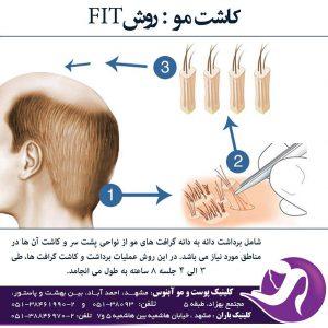 کاشت مو به روش فیت