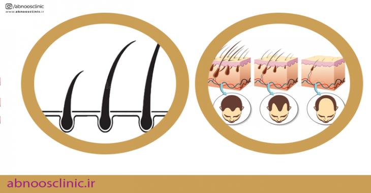 رشد مو ها بعد کاشت مو چگونه است ؟