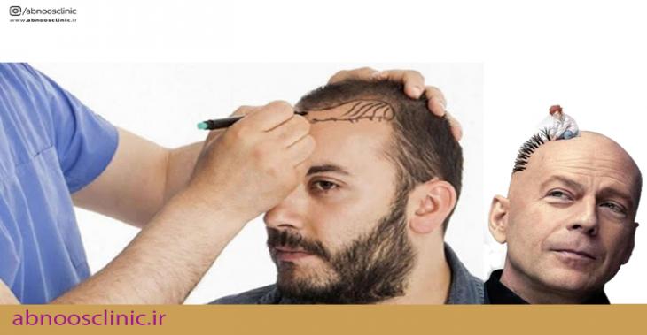 جدیدترین روش کاشت مو در ایران چیست؟