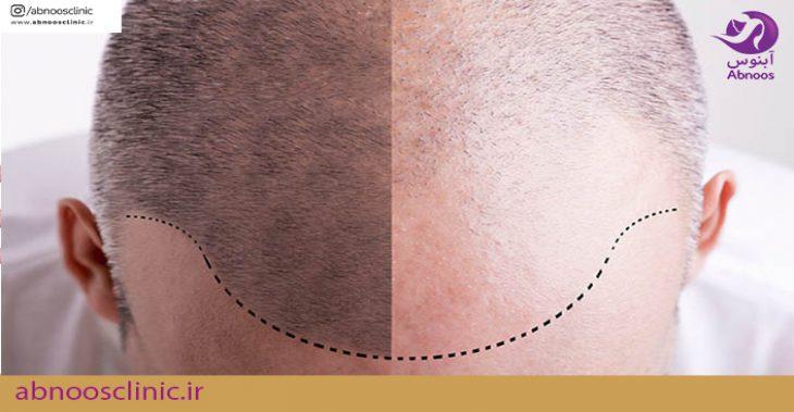 مراحل کاشت مو و انواع روش هاکاشت مو