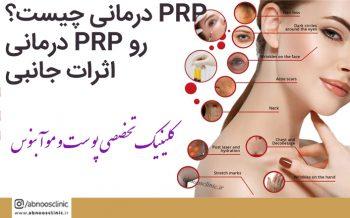 PRP درمانی چیست؟روند PRP درمانی ,اثرات جانبی