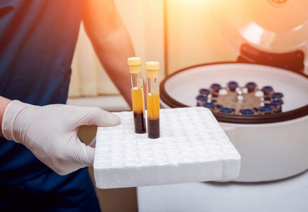PRP درمانی چیست؟