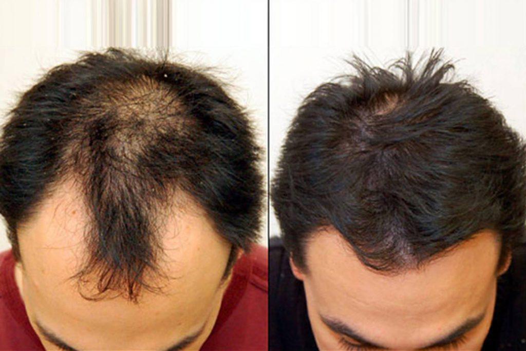 PRP برای ترمیم مو|کلینک تخصصی پوست ومو آبنوس