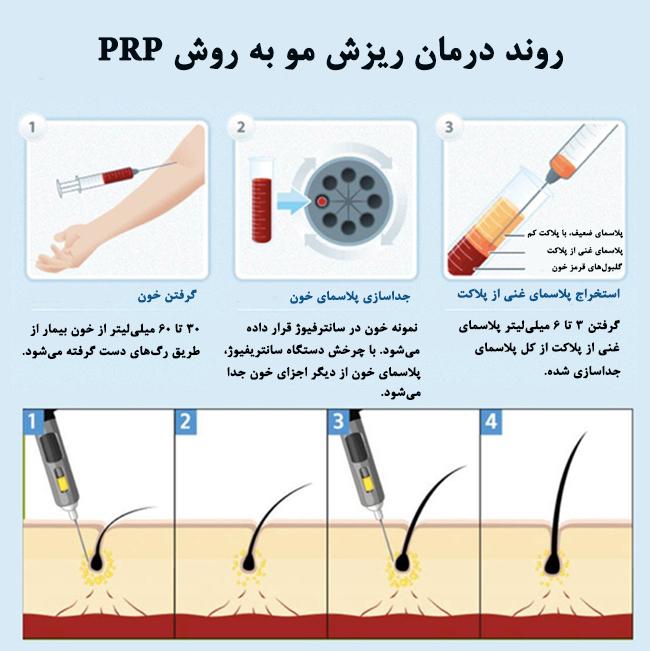 مراحل PRP برای ترمیم مو