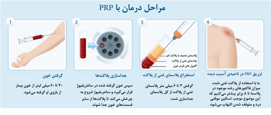 روند PRP درمانی