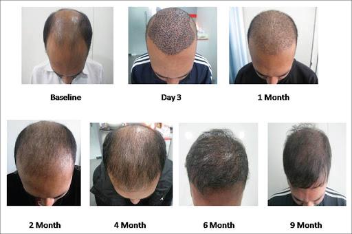 """5 عاملی که در """"کاشت موی ناموفق"""" نقش دارند"""