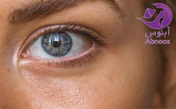استفاده از فرآورده های سلامت پوست